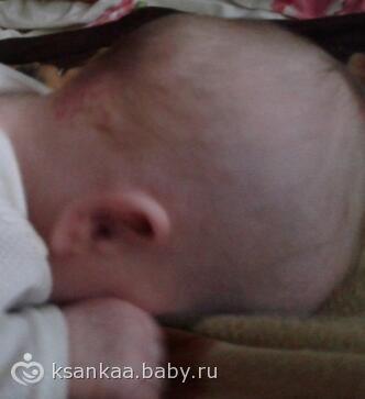 У ребенка вот такая голова странная, только щас заметила.  Так ж не должна она быть? как шишка.