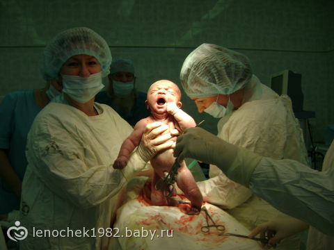 Очень подробные фотографии процесса родов в роддоме