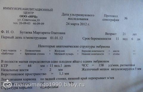 МОЕ первое УЗИ… ФОТО… я такая счастливая=0)) там такой малютка)))